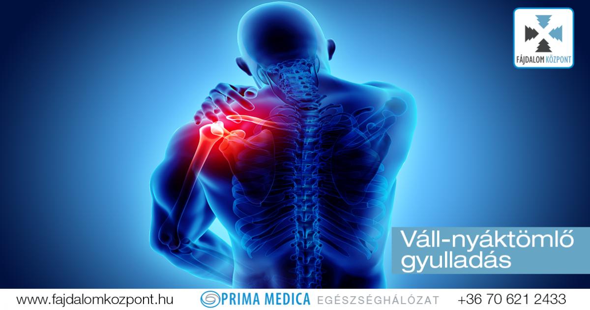 fájdalomcsillapítás ízületi duzzanat az 1. fokú kezelési fórum artrózisa