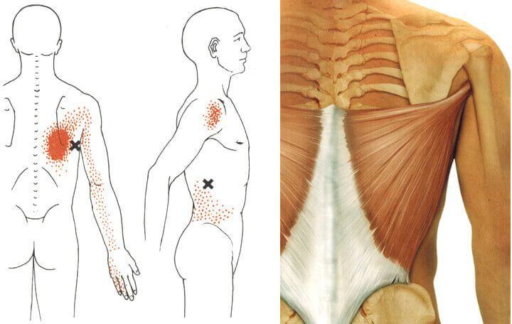 a deformáló artrózis homeopátia kezelése