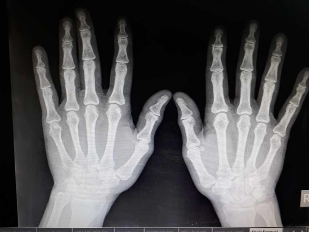 a hüvelykujj carpo metacarpalis ízületi gyulladása
