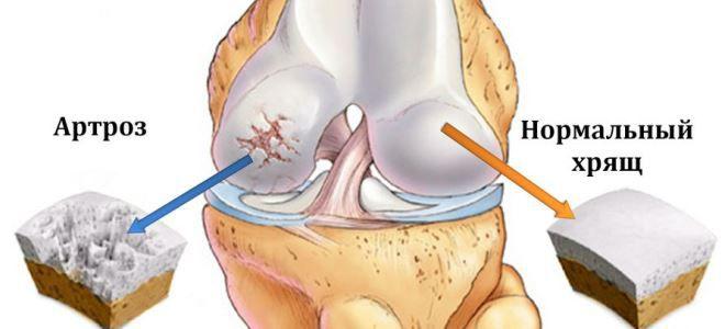 a jobb térdízület osteoarthrosis kezelése