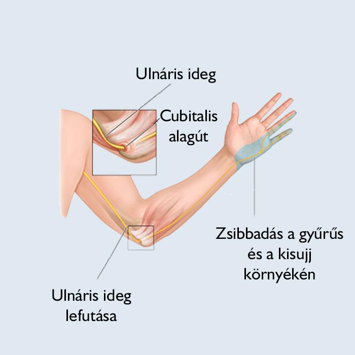 a kezek zsibbadása, ízületi fájdalom)