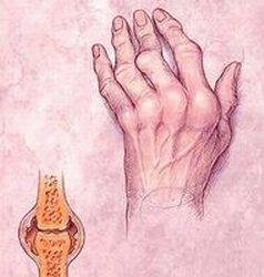 a kéz deformációja reumatoid artritiszben)