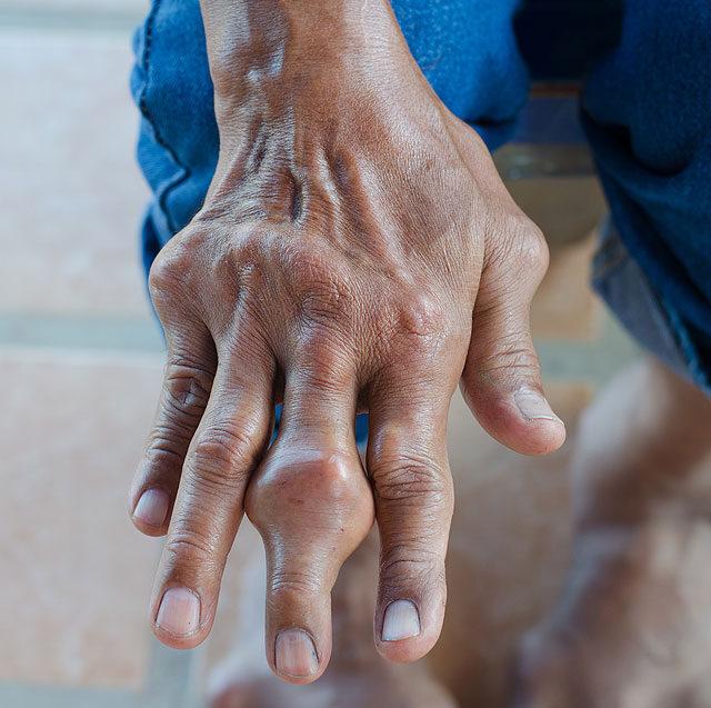 a kéz kisujja ízületének gyulladása)