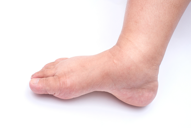 a láb duzzanata a boka