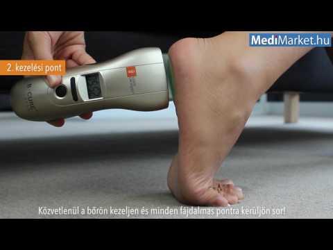 a lábujjízületi tünetek
