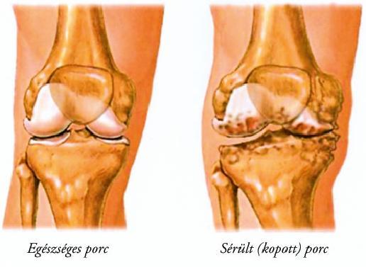 a térd artrózisának kezelésében szerzett tapasztalatok