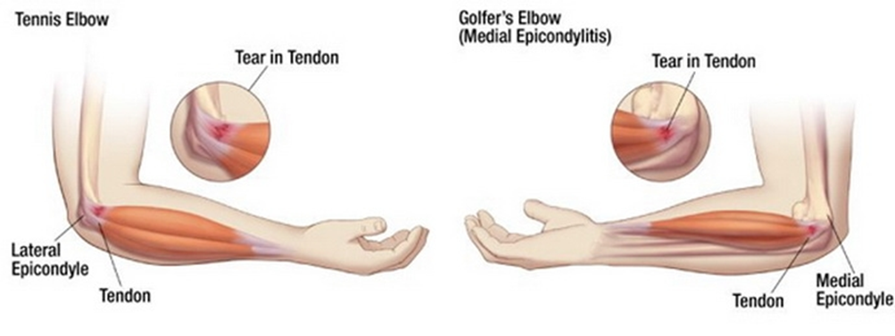 a térd artrózisának tornakezelése)