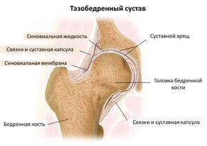 a térd deformáló artrózisának stádiumai)