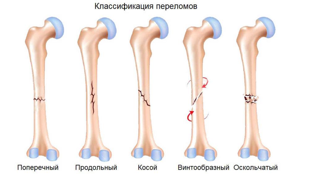 szer a gerinc gerinctelen csontritkulásának kezelésére