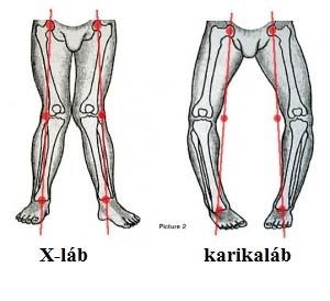 a térdízület és az alsó láb károsodása