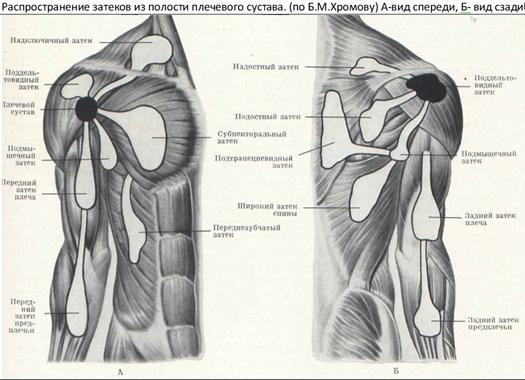 a vállízület supraspinatus izomjának inakárosodása)