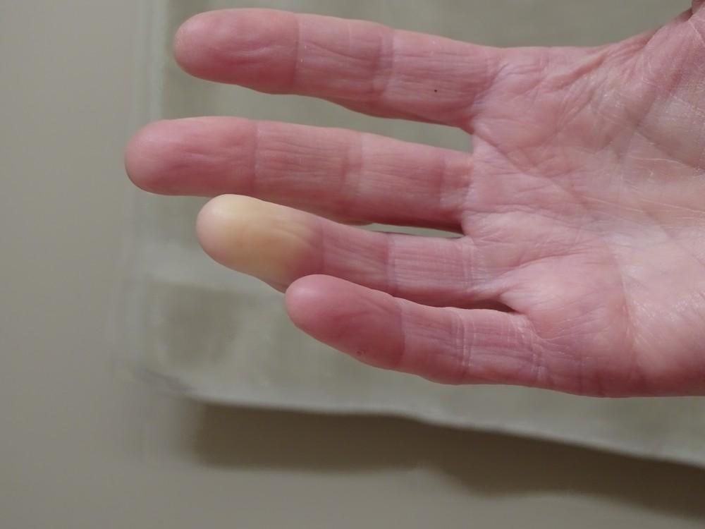 az ujjak ízületei fájnak a csontokról