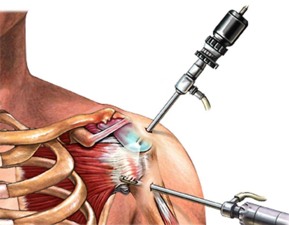 keresztirányú fasciális artrózis kezelés