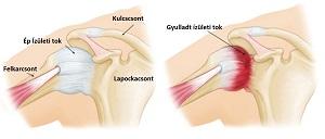 Csontlágyulás - Okok, tünetek és kezelés