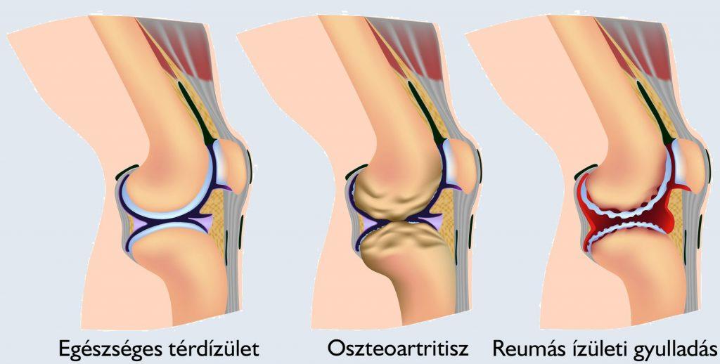 térd endoszkópia artrózis esetén)