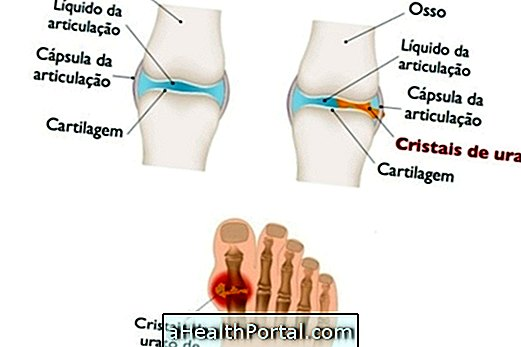allopurinol ízületi fájdalom