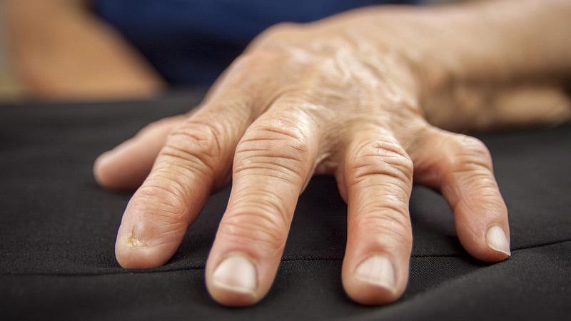 arthrosis kezelés gyógyítókkal ízületi fájdalmakhoz, mi az étel