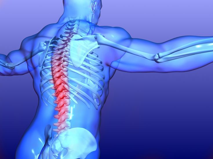 arthrosis spondylosis kezelés)