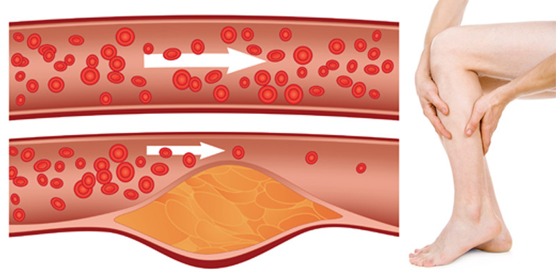 ízületi mozgás helyreállítása sérülések után időleges ízületi tünetek