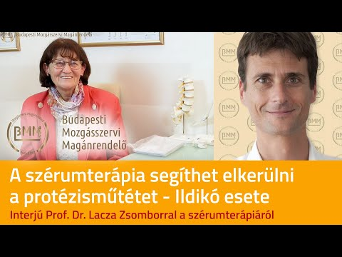 artrózis térdvédő kezelés)