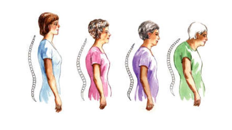 az artrózis csontritkulást kezel