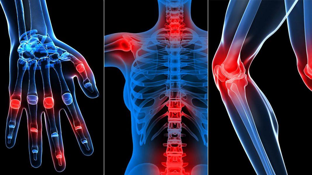 az izmok és az ízületek fájdalom a betegség után