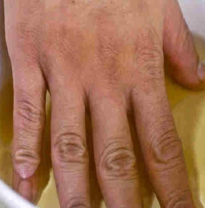 az ujjak psoriasis ízületi gyulladása