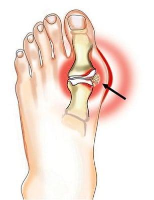 az ujjízület deformáló artrózisa