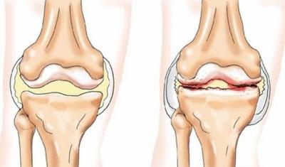 az ízület coxarthrosis artrózisa