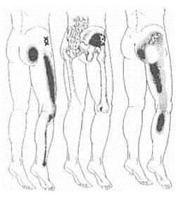 gyulladásos folyamatok kezelése az egész gerinc artrózisával kinezoterápia térd artrózisához