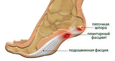 mi köze a bokaízület fájdalmához