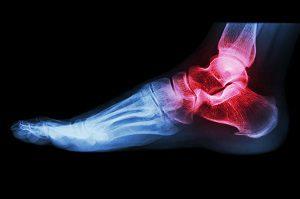éles fájdalom a bokaízületben sérülés nélkül)