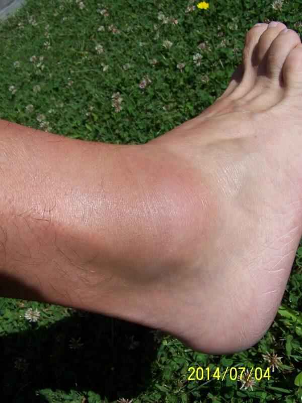 a lábak és a boka duzzanata)