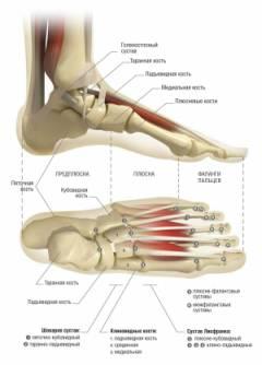 a talacaneális ízület deformáló artrózisa)