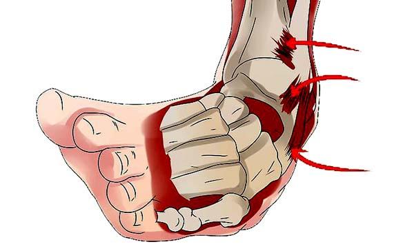 boka ligamentum sérülése