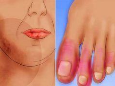 arthritis autoimmun betegség