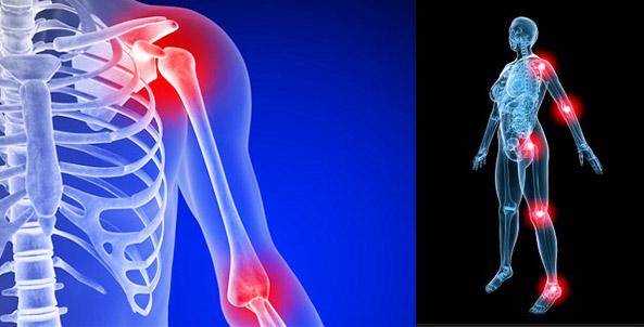 arthrosis kezelés törökországban a bokaízület deformáló artrózisa 1 fokos kezelés