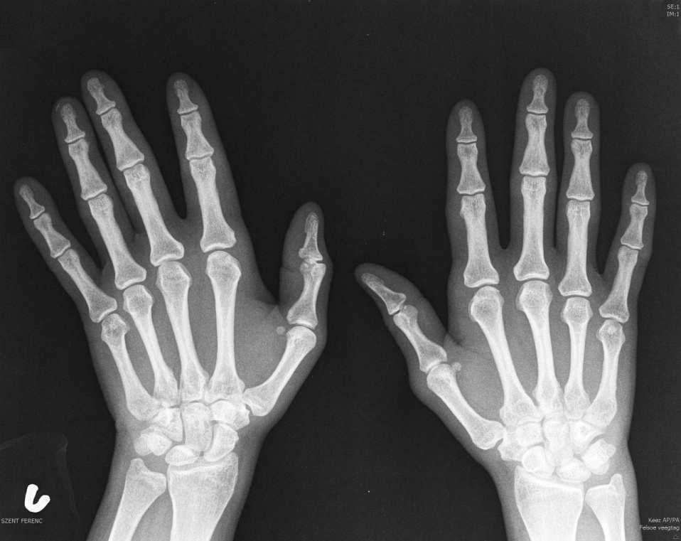 a kéz apró ízületeinek rheumatoid arthritis térdízület fájdalommasszázs