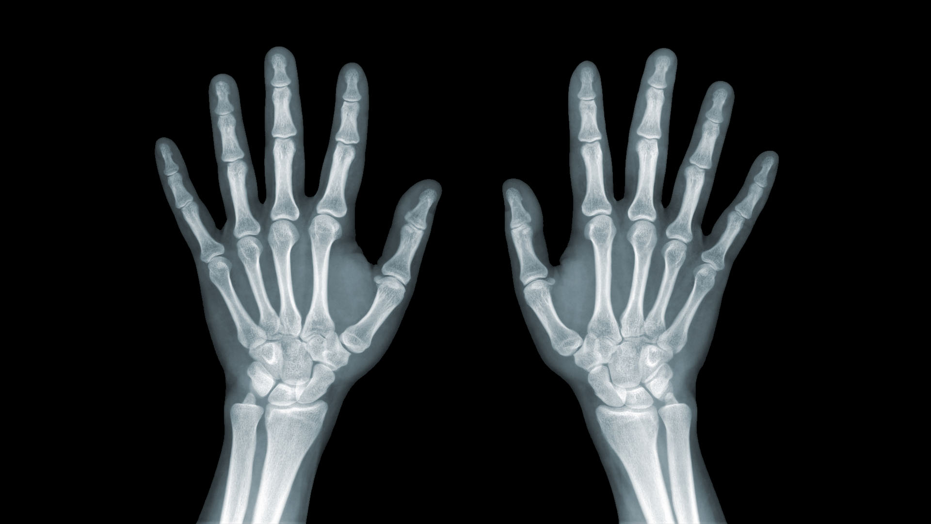 térdízület injekciós kezelés artrózisa rákattint és fáj a kefe ízületén