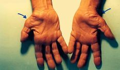 carpal ízületi fájdalom