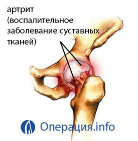 a térd akut artrózisa 2-3 fok
