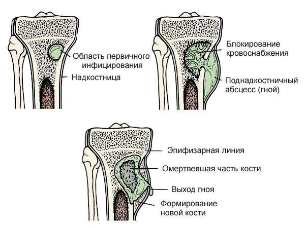 csípőízületek fájnak a séta miatt