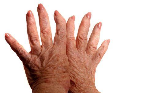 kéz gyulladás