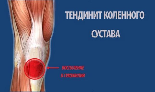 térdízület kezelés myositis