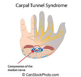 Carpalis alagút-szindróma tünetei és kezelése - HáziPatika