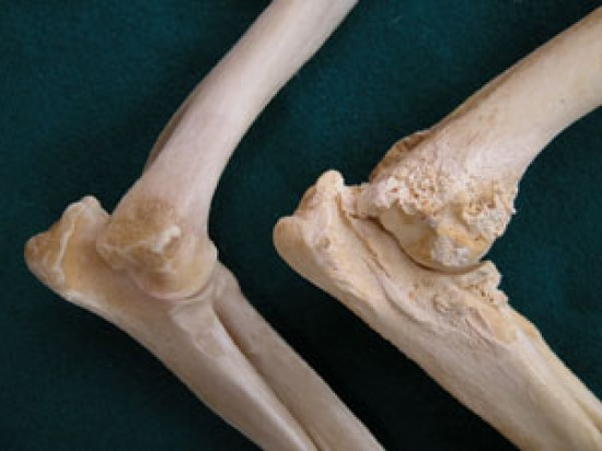 csípő-diszplázia következményei, ha nem kezelik