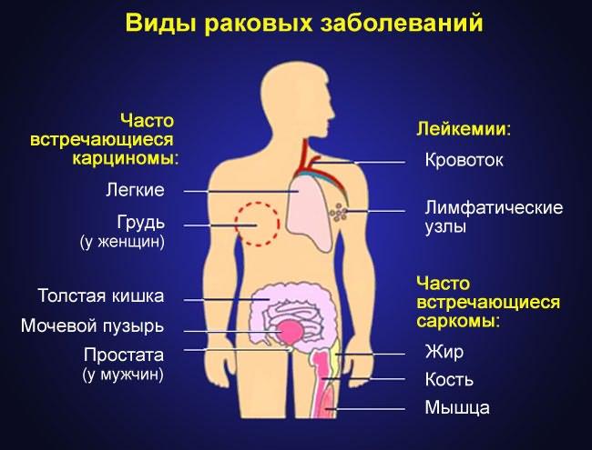 csípőbetegség ankylosis ízületi fájdalom és kiütés felnőttnél