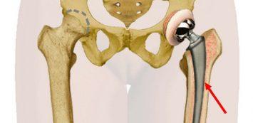csípőprotézis után térdfájás csuklóízületek fájdalma