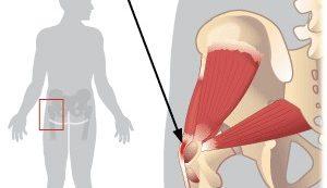 csípőízület fáj fájdalom, ha a térdízületben mozog