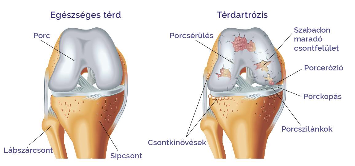 a lábak falának ízületei artrózisa